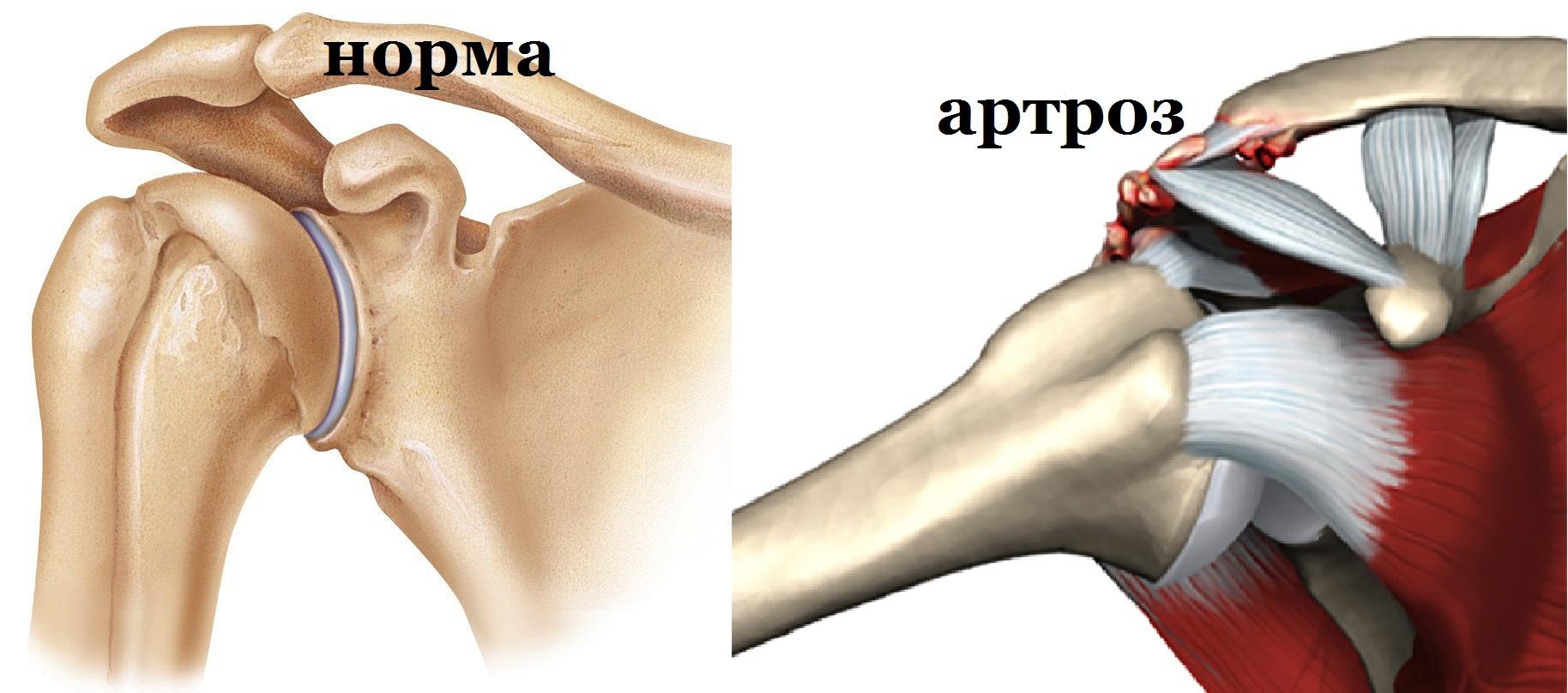 Псориатический артрит лечение гормонами